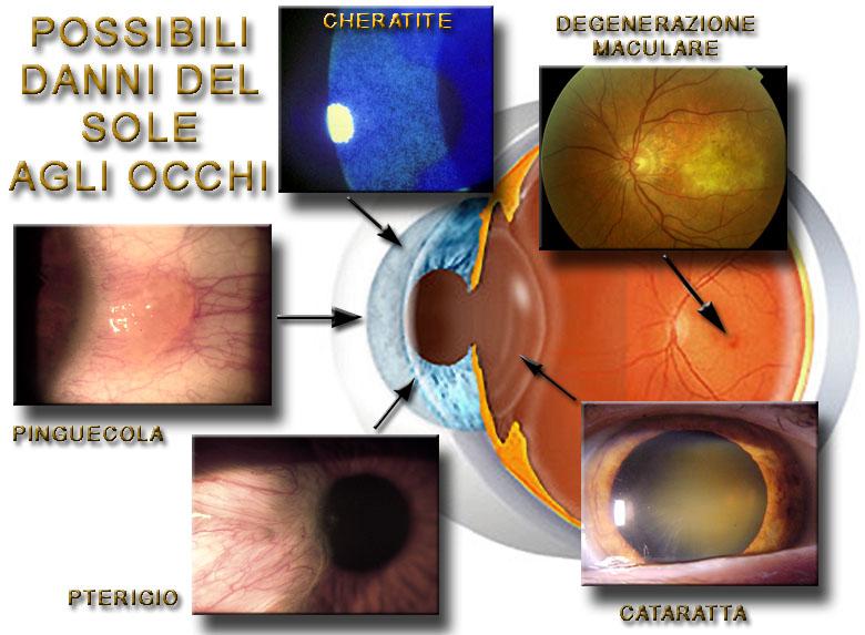 brytningsfeil i øyet