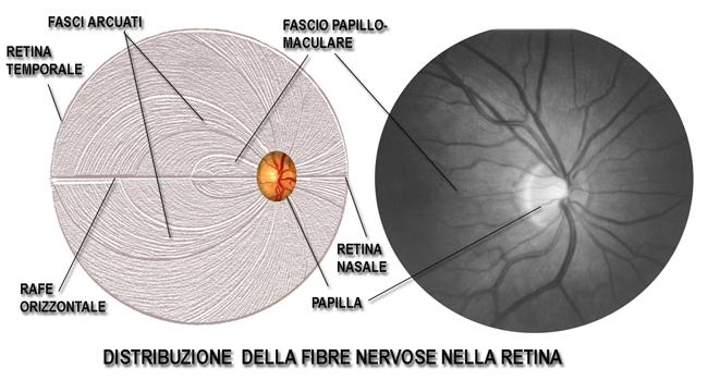 Glaukom - Dr. Carlo Benedetti