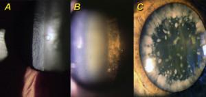 A: un vacuolo nella sottocorticale anteriore del cristallino. Asintomatici rappresentano una iniziale degenerazione della fibre corticali del cristallino. B: una cataratta nucleare e corticale  posteriore. C: una cataratta corticale.