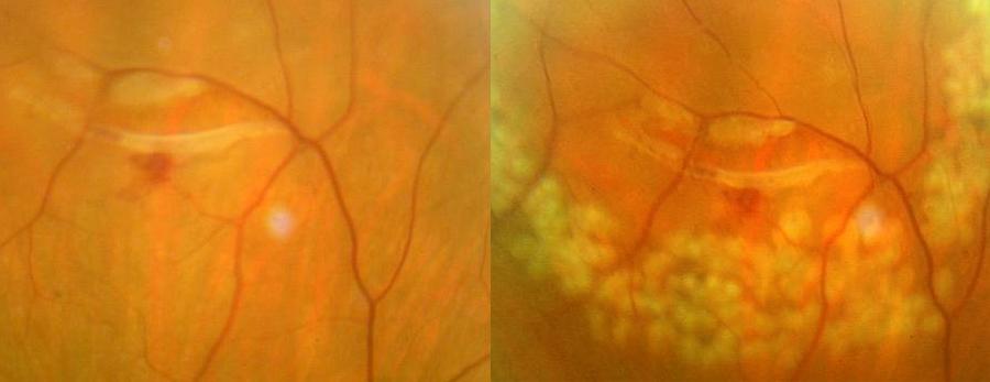Ampia lacerazione retinica prima e dopo trattamento laser (ben evidenti gli spot laser biancastri che in circa 2 settimane pigmenteranno formando una tenace aderenza con la retina)