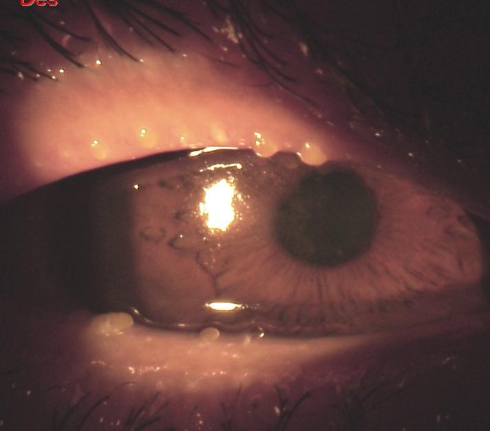 La infección y la inflamación de las glándulas de Meibomio se llama meibomianitis o blefaritis posterior