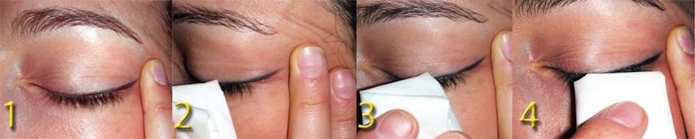 La detersione dei bordi palpebrali e della radice delle ciglia si effettua tirando la rima palpebrale a palpebre chiuse con un dito verso l'orecchio e strofinando energicamente la salvietta detergente dall'angolo palpebrale vicino al naso sino a congiungersi con l'altro dito rimuovendo completamentente le secrezione ed i detriti alla base delle ciglia, la forfora, e le squamette tipiche della blefarite
